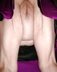 Elderly vulva over 60 part 3